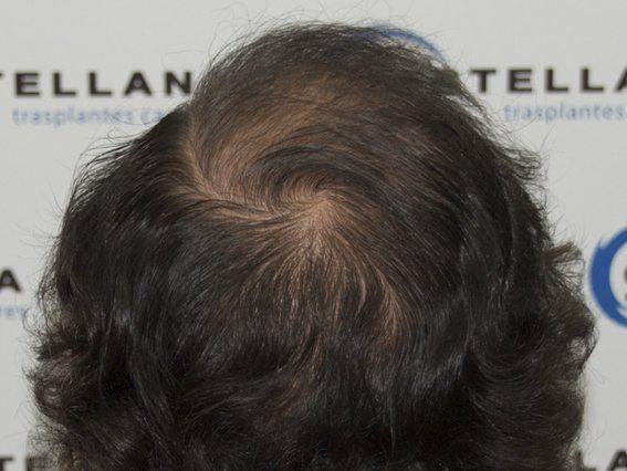 Tratamiento para cabello graso y caída, recupera la salud de tu cabello